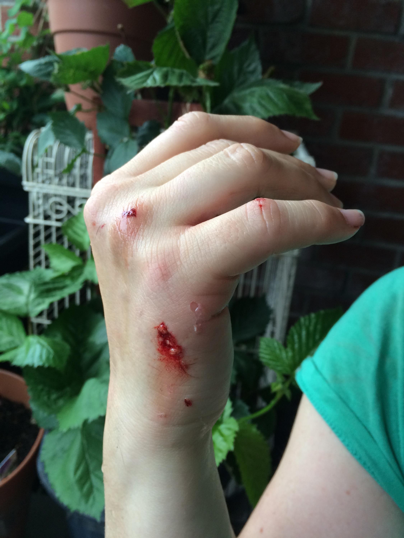 Img My Dog Occasionally Attacks